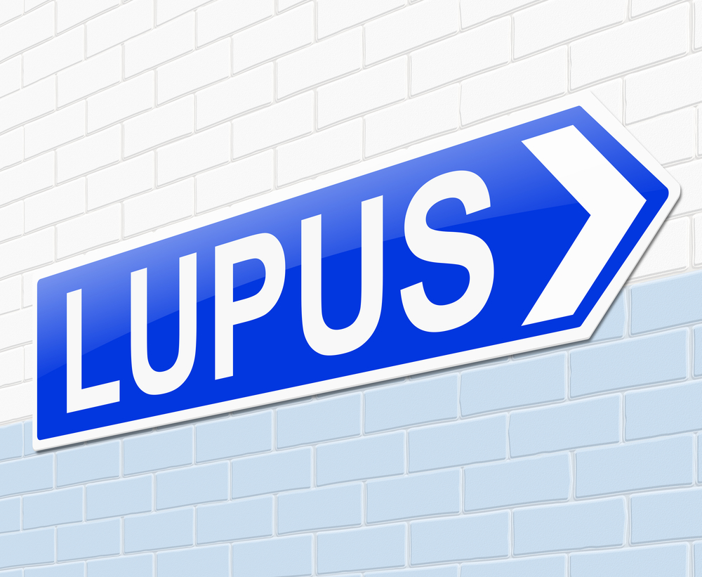Study Evaluates SLICC-12 Classification Criteria for Lupus Diagnosis