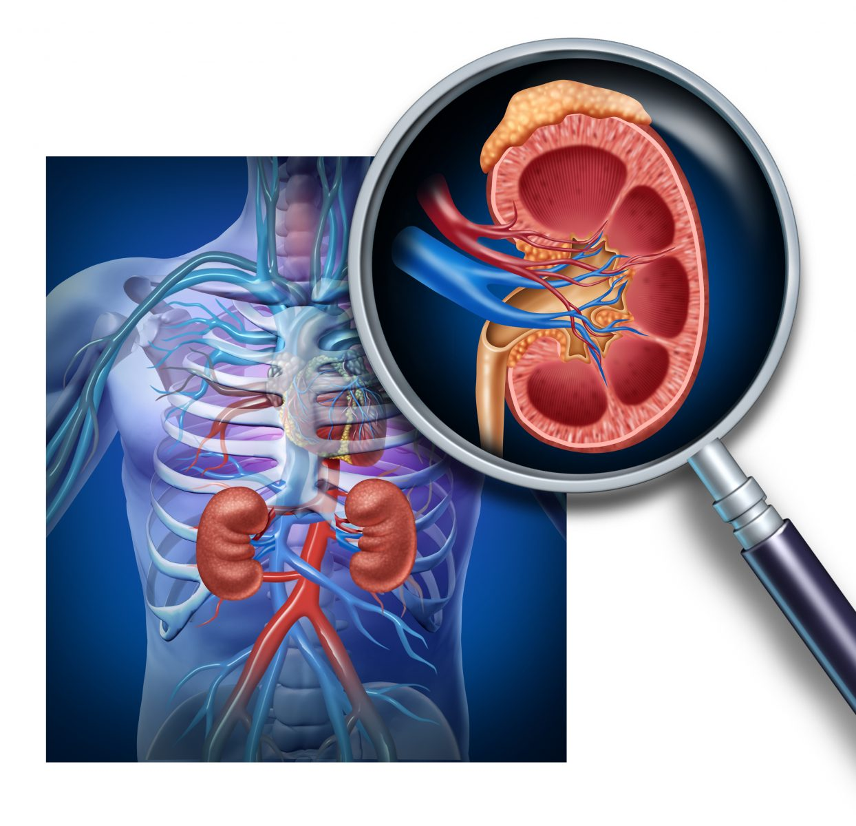Lupus and kidney disease