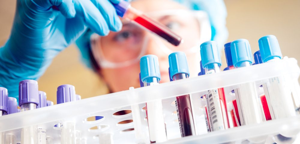 Specific Antibody in Blood May Be Biomarker of Kidney Disease in Lupus Patients