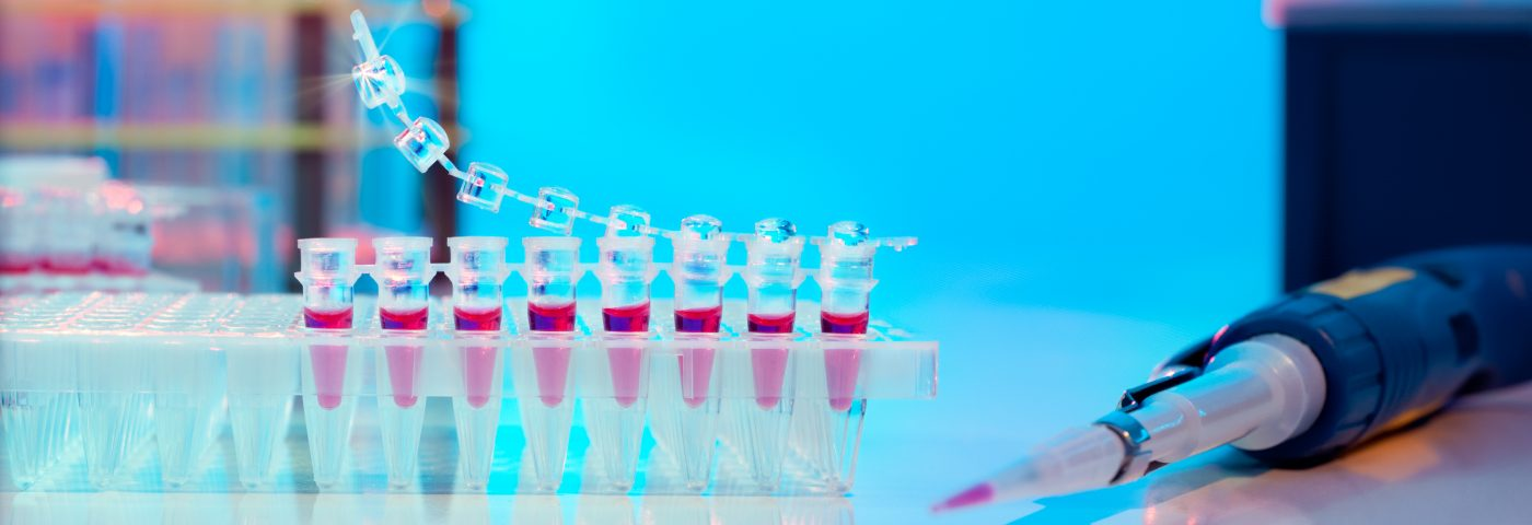 Blood Profiling May Help Identify Lupus Patients at Risk of Kidney Failure