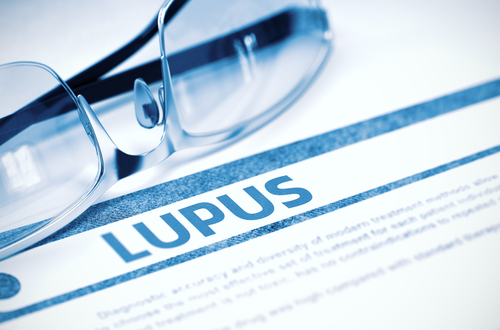 Lupus dosing-test endorsement