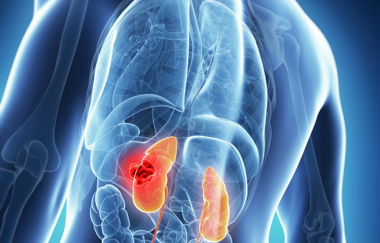 Lupus Nephritis Patients' Lack of Response to Initial Therapy Can Predict Kidney Issues, Disease Severity