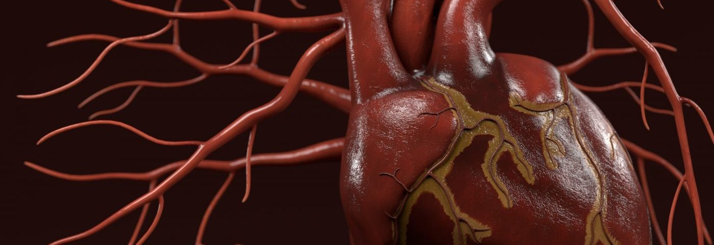 Long-Term Prognosis Typically Positive for SLE Patients with Lupus Myocarditis, Study Finds