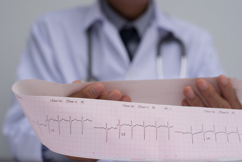 Early Detection of ECG Anomalies in SLE Patients May Prevent Heart Disease