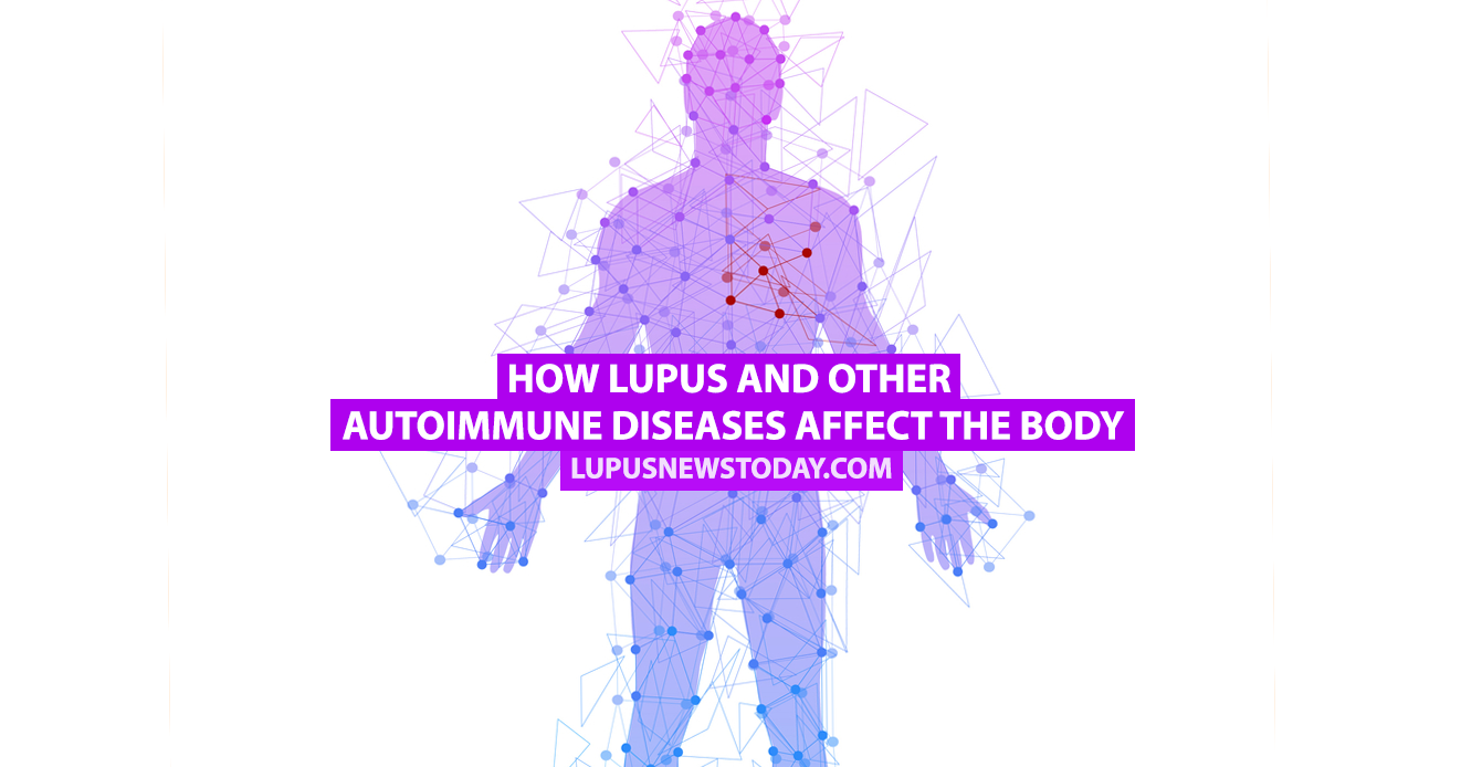 how lupus and other autoimmune diseases affect the body - lupus, Muscles