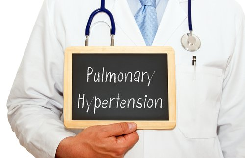 SLE Patients with Antiphospholipid Antibodies at Risk for Pulmonary Hypertension, Study Finds