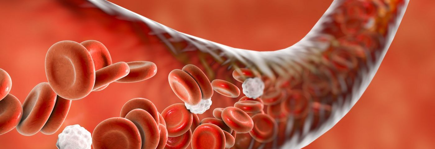 Anemia and Low Lymphocyte Numbers Are Most Common Blood Disorders in Lupus Patients, Study Finds