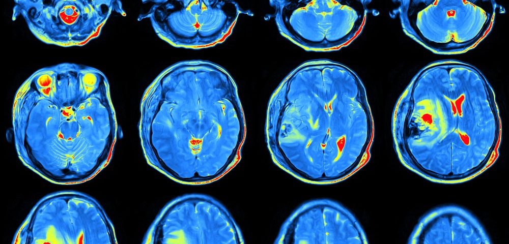 Rituxan Could Be Alternative Therapy in Patients with Neurological Issues, Case Report Indicates