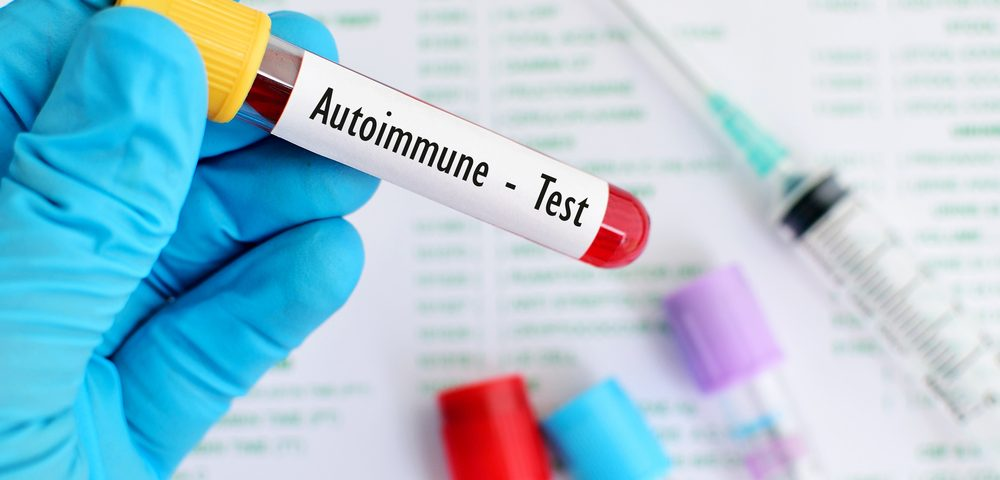 Certain Autoantibodies May Help Identify Lupus Patients at Risk for PAH, Research Finds