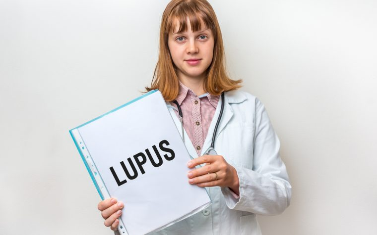 cerebrovascular events, lupus
