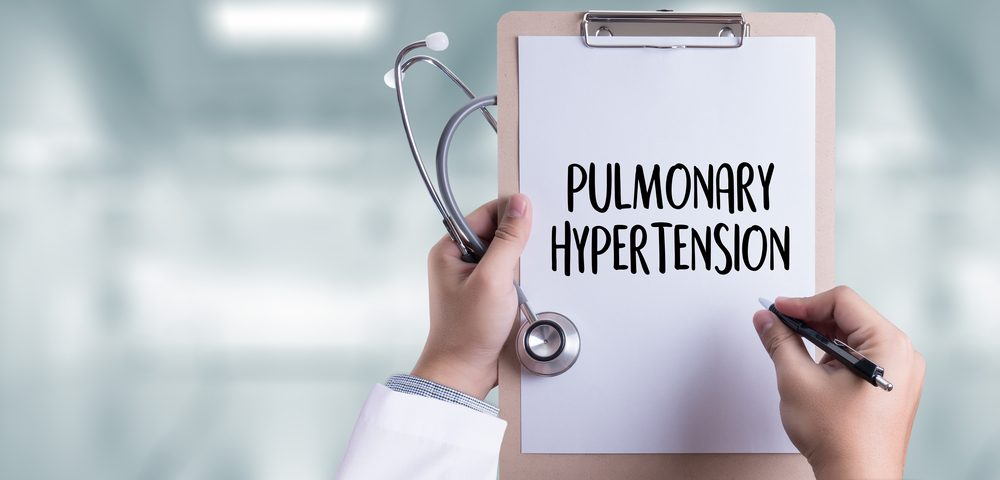 Pulmonary Hypertension More Common in Adult Male Lupus Patients, New Study Shows