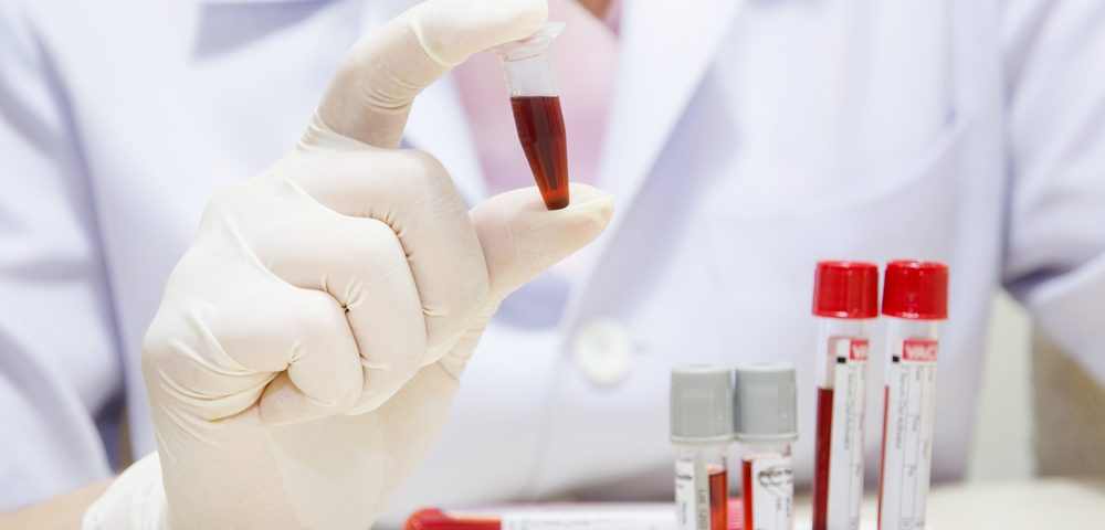 Enzyme's Activity Could Help Diagnose, Track Progression of Lupus, Study Reports