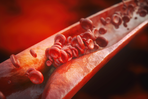 Lupus Patients More Likely to Develop Atherosclerosis, Study Suggests